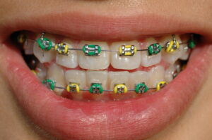 colorful braces of a smiling teenager