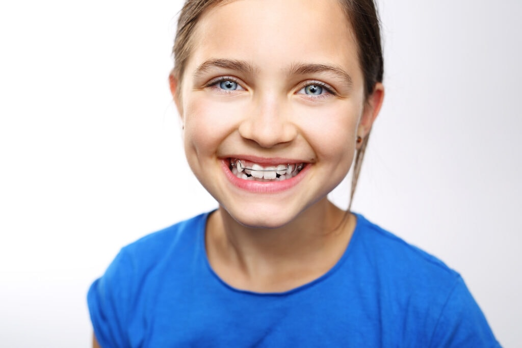 Smiling young girl wearing palatal expander