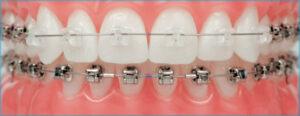 Ceramic braces on front teeth