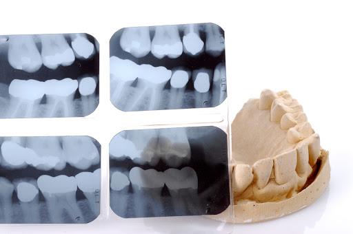 Raios X dentários
